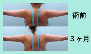 『後ろ姿すっきり!「二の腕肩付け根+腰の脂肪吸引」』の画像