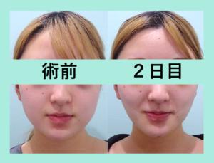 『2日目でもシュッとしています!「小顔組み合わせ治療」』の画像