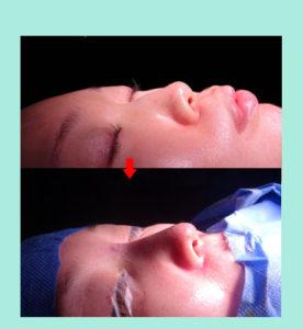 『鼻尖形成、手術直後の美しい仕上がり!』の画像