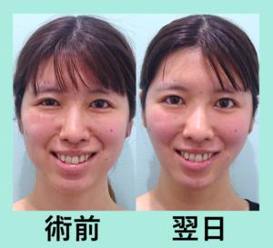 『これぞキツネライン!ダウンタイムがほとんどない「小顔組み合わせ治療」』の画像