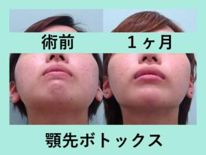 『見よ、顎先ボトックスの威力を!!「小顔組み合わせ治療」』の画像