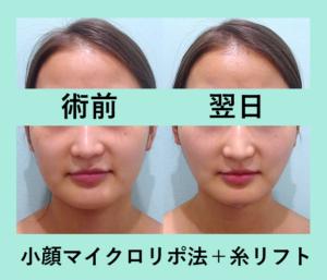 『本当に腫れないです!3人分まとめて一挙紹介!「小顔組み合わせ治療」』の画像