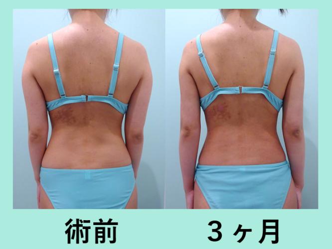二の腕 肩 付け根 腰 脂肪吸引 ダウンタイム