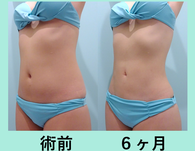 腹部 背中 腰 脂肪吸引 ダウンタイム