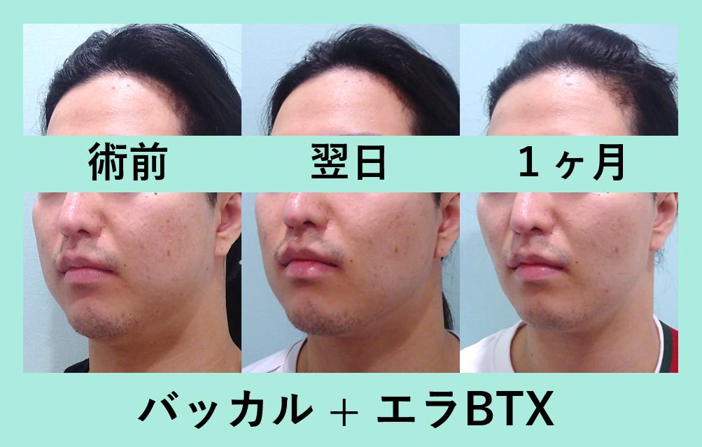小顔 脂肪吸引 バッカルファット  ビフォーアフター