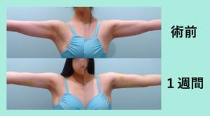『内出血の少なく芸術的な「二の腕肩付け根の脂肪吸引」』の画像