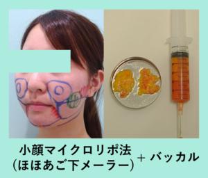 『最大変化のフルコンボ! ほほ,あご,バッカル,メーラーの「小顔組み合わせ治療」』の画像