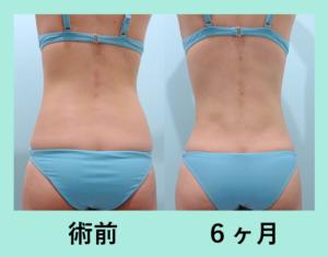 『ビューティフルな仕上がり!「腹部全体背中腰の脂肪吸引」』の画像