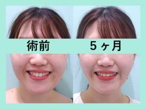 『顎下激変!骨切りレベルに変化「小顔マイクロリポ法」』の画像