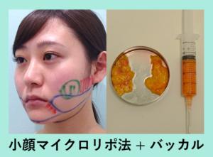 『コケないように工夫した「小顔組み合わせ治療」』の画像
