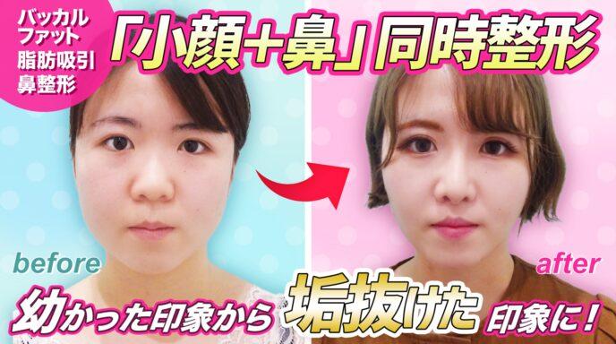 頬と顎下_脂肪吸引_バッカルファット除去_鼻尖形成