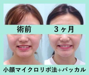 『破壊力抜群の「小顔組み合わせ治療」』の画像