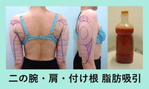 『超キレイです!ダイエットも頑張りました!「二の腕肩付け根の脂肪吸引」』の画像