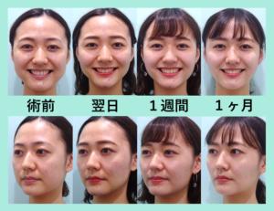 『効果絶大!可愛くなりましたね!「小顔組み合わせ治療」』の画像