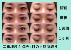 『キツい目つきを治す「二重組み合わせ治療」』の画像