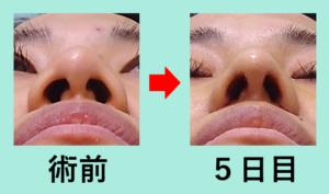 『こだわりの技術で「バランスの取れた端整な鼻」を最小ダウンタイムで実現!』の画像