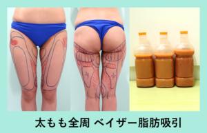 『翌日から感動レベルに細い!?「太もも全周の脂肪吸引」』の画像