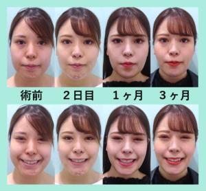『バレない!理想的な「小顔組み合わせ治療」』の画像