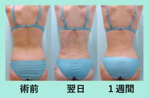 『芸術的にがっつり取ります!しかもダウンタイム最小です!「背中と腰の脂肪吸引」』の画像
