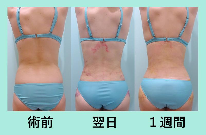 背中 ベイザー 腰 脂肪吸引 ダウンタイム