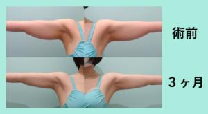 『弛ませずにしっかり細くする!「二の腕肩付け根の脂肪吸引」』の画像