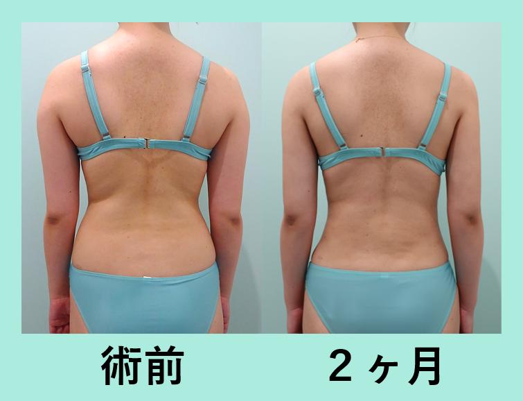 二の腕 肩 腰 付け根 脂肪吸引 ダウンタイム
