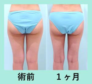 『取りすぎ一歩手前で止める!「太ももの脂肪吸引」』の画像