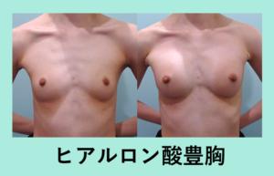 『痩せ型の方には「ヒアルロン酸豊胸」』の画像