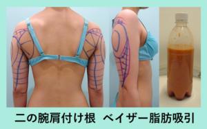 『すっきりとした後ろ姿に「二の腕肩付け根の脂肪吸引」』の画像