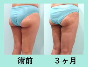 『きっちり細くします!「太もも全周+膝+下臀の脂肪吸引」』の画像