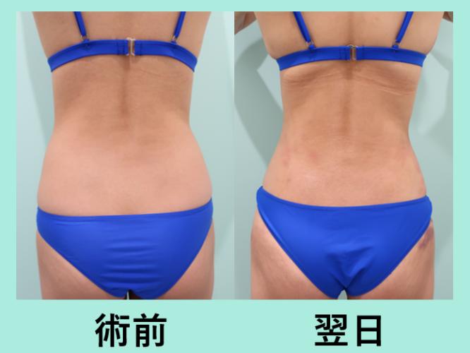 腰 ベイザー 脂肪吸引 ダウンタイム