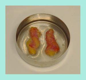 『自然にパッチリにする「二重組み合わせ治療」』の画像