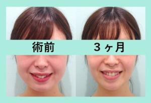 『幼い丸顔 ⇒ 大人っぽい輪郭に「小顔組み合わせ治療」』の画像