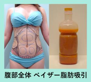 『上半身全部のベイザー脂肪吸引!「二の腕肩付け根・背中・腰・腹部全体の脂肪吸引」』の画像