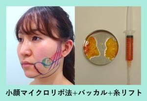 『コケないように工夫する「小顔組み合わせ治療」』の画像