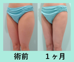 『美しいラインを作る「太ももの脂肪吸引」』の画像