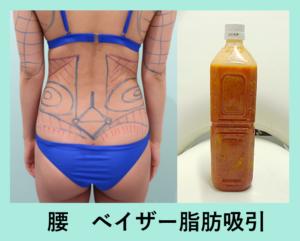『翌日からクビれる!「腰の脂肪吸引」』の画像