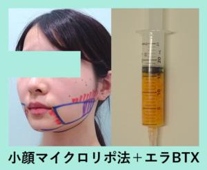 『完璧な横顔になりました!「小顔マイクロリポ法」』の画像