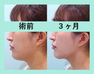 『3人分まとめてご紹介。自然で滑らかな仕上がりに「小顔組み合わせ治療」』の画像