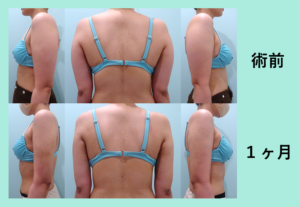 『しっかり変わります!「二の腕肩付け根の脂肪吸引」』の画像