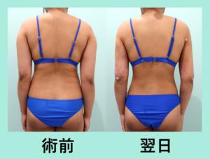 『広範囲でも内出血なし!!「二の腕肩付け根背中腰の脂肪吸引」』の画像