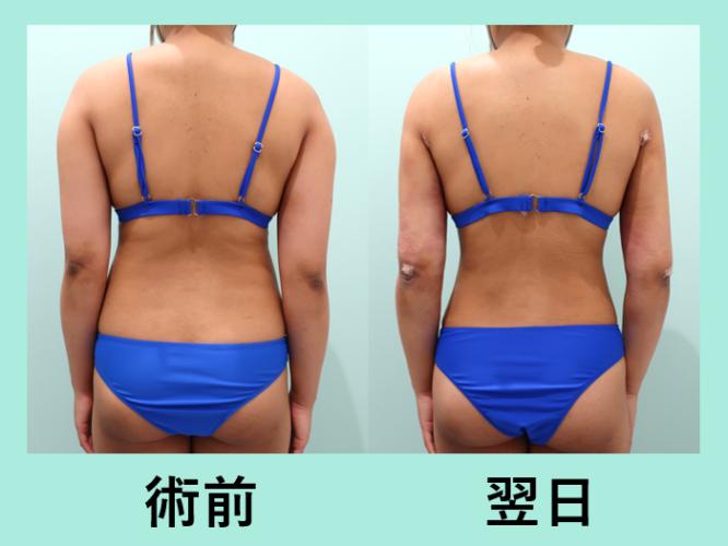 二の腕 腰 背中 脂肪吸引 ダウンタイム
