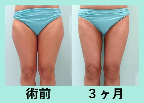 太もも 膝 ベイザー 脂肪吸引 ダウンタイム