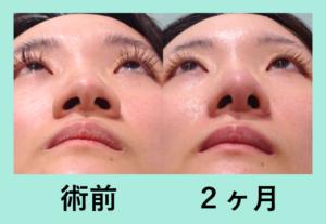 『バランスを整える「鼻尖形成+小鼻縮小術」』の画像
