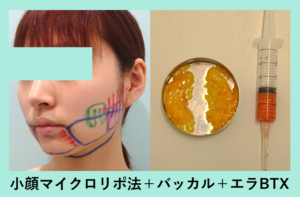 『吸引少なめ バッカル多めのパターン「小顔組み合わせ治療」』の画像