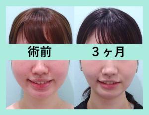 『3人まとめてビフォーアフター「小顔組み合わせ治療」』の画像