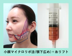 『3人分まとめて施術翌日の経過をご紹介します!「小顔組み合わせ治療」』の画像
