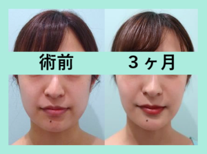 『3人まとめてビフォーアフターご紹介「小顔組み合わせ治療」』の画像