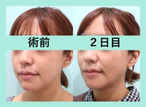 『施術直後の経過を3人分まとめてご紹介「小顔組み合わせ治療」』の画像
