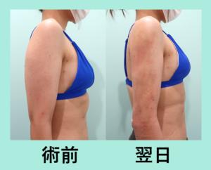 『翌日から細い!?「二の腕肩付け根と背中の脂肪吸引」』の画像
